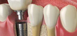HIGH QUALITY IMPLANTS IN THE UP DENTAL CLINIC
