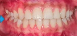 """Orthodontic services at UP Dental Clinic """"Braces on – Braces off"""""""